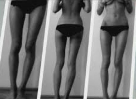 thigh gap girl